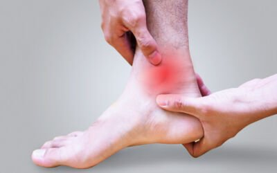 Ankle Sprains – Do You Need to See a Physiotherapist?